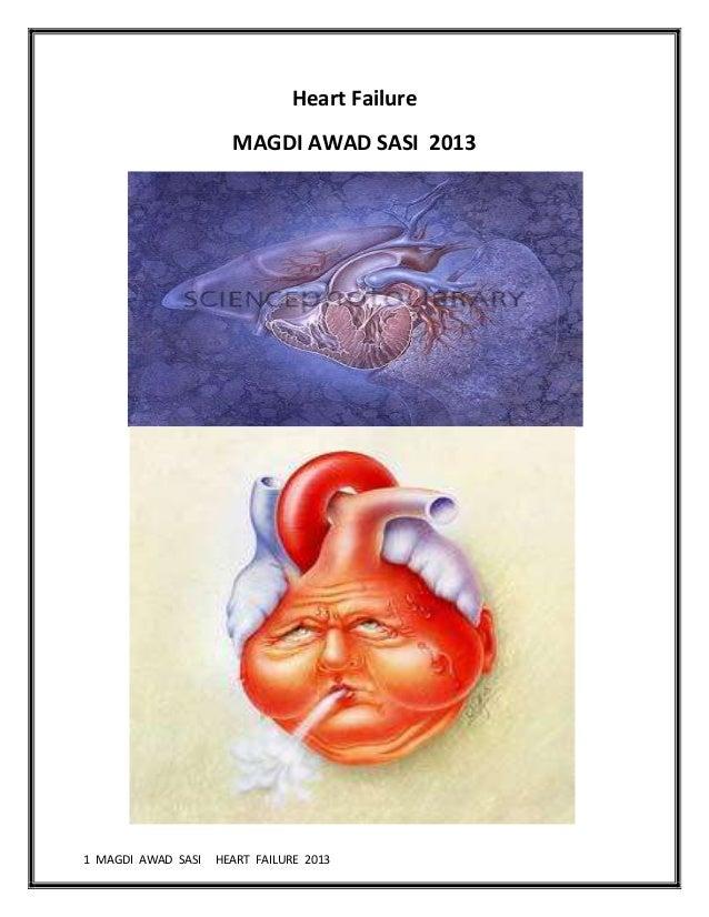 1 MAGDI AWAD SASI HEART FAILURE 2013Heart FailureMAGDI AWAD SASI 2013