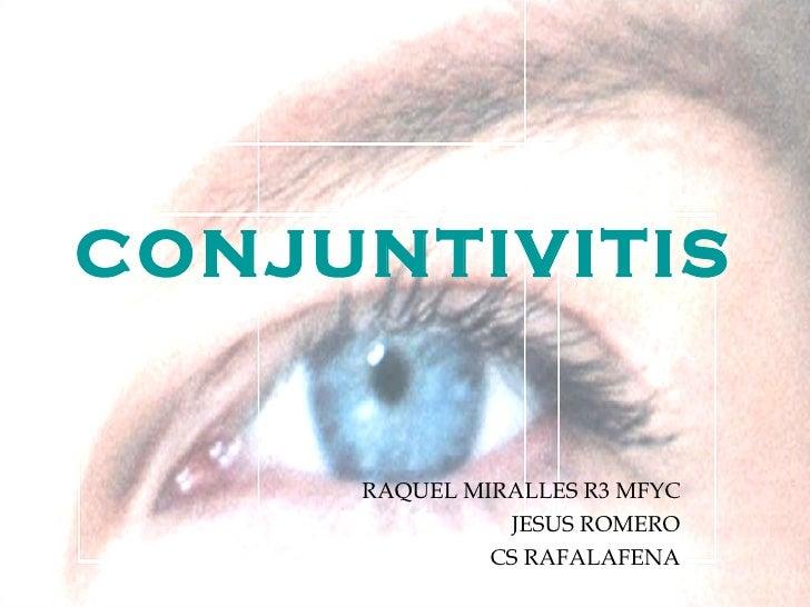 CONJUNTIVITIS RAQUEL MIRALLES R3 MFYC JESUS ROMERO CS RAFALAFENA