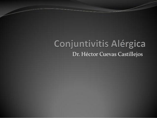 Conjuntivitis alergica