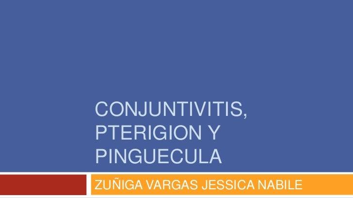 CONJUNTIVITIS,PTERIGION YPINGUECULAZUÑIGA VARGAS JESSICA NABILE