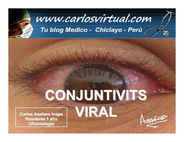CONJUNTIVITS               VIRAL Carlos Azañero Inope   Residente 1 año     Oftalmología       Dr. Carlos Augusto Azañero ...