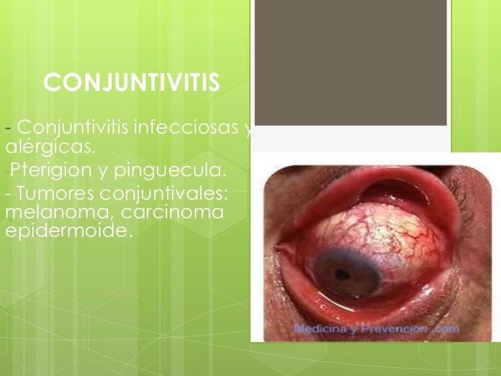 CONJUNTIVITIS- Conjuntivitis infecciosas yalérgicas.-Pterigion y pinguecula.- Tumores conjuntivales:melanoma, carcinomaepi...