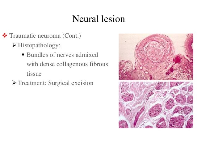 Traumatic neuroma mental nerve