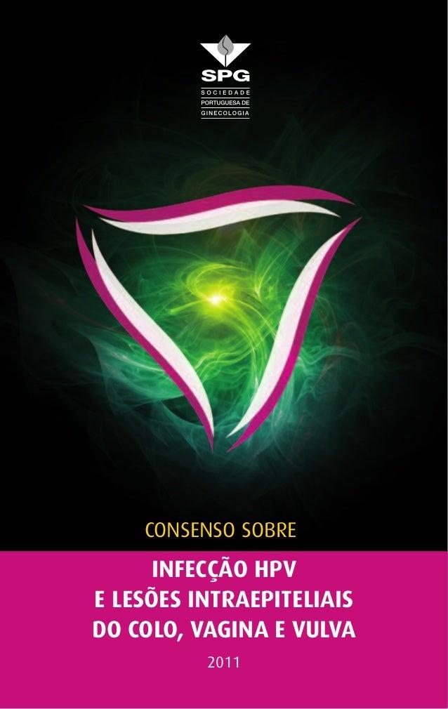 INFECÇÃO HPV E LESÕES INTRAEPITELIAIS DO COLO, VAGINA E VULVA 2011 Consenso sobre