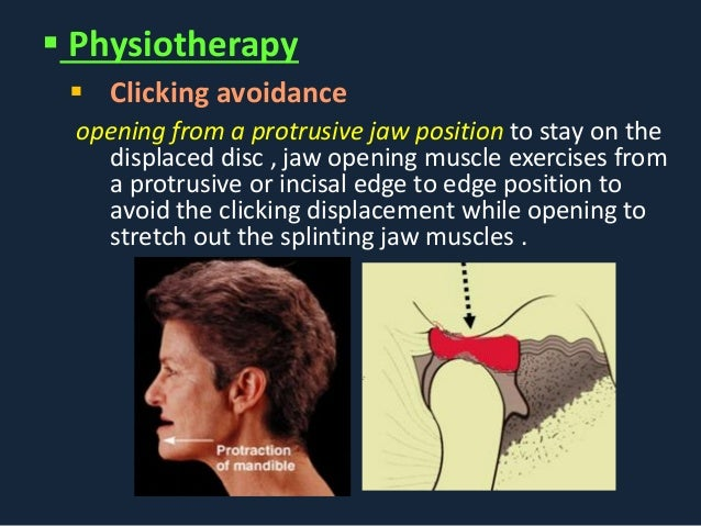 Jaw Muscle Exercises Jaw Opening Muscle
