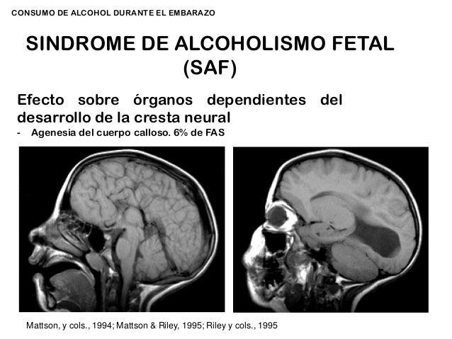El medio público el tratamiento del alcoholismo crónico