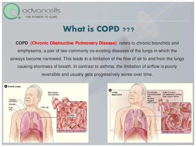 chronic obstructive pulmonary disease copd essay