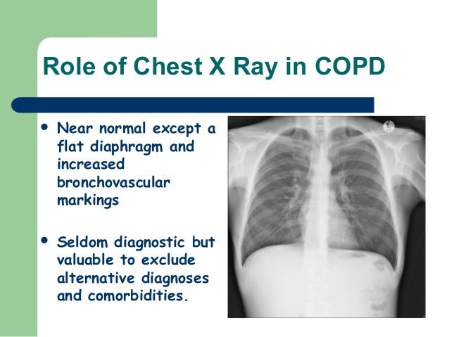 pictures Oxygen Therapy for COPD