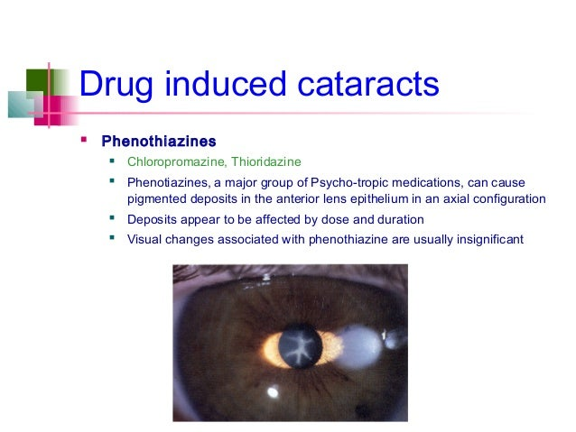 steroid induced cataracts surgery