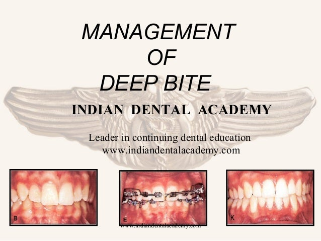 MANAGEMENT OF DEEP BITE INDIAN DENTAL ACADEMY Leader in continuing dental education www.indiandentalacademy.com  www.india...