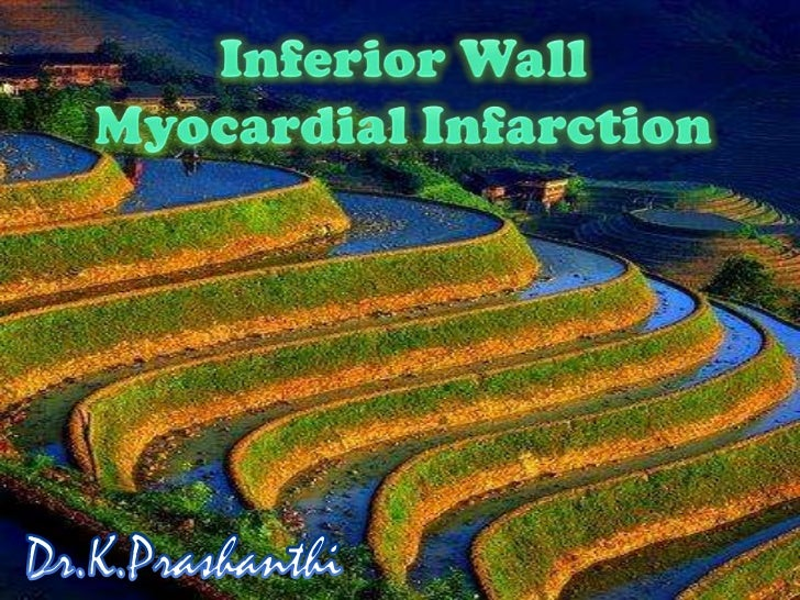 Inferior Wall <br />Myocardial Infarction<br />Dr.K.Prashanthi<br />