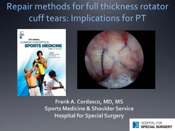 Repair methods for full thickness rotator cuff tears: Implications for PT