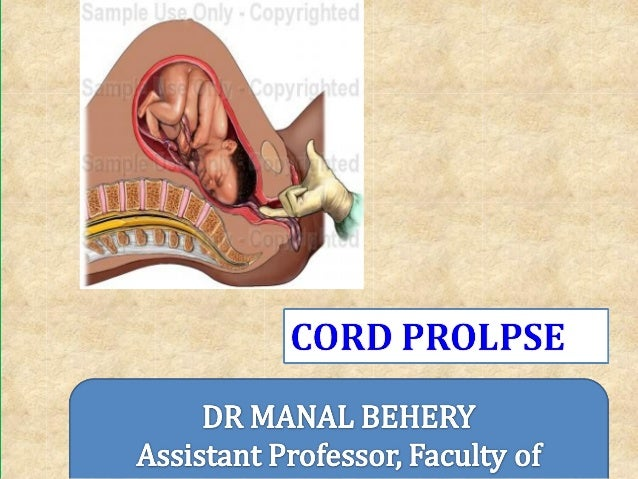 DefinitionCord Presentation: Cord in front of presenting part before the rupture of membranesCord Prolapse: Cord in fron...