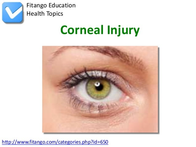 http://www.fitango.com/categories.php?id=650Fitango EducationHealth TopicsCorneal Injury