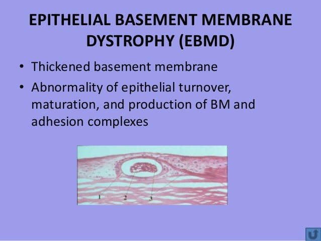 basement membrane dystrophy ebmd thickened basement membrane