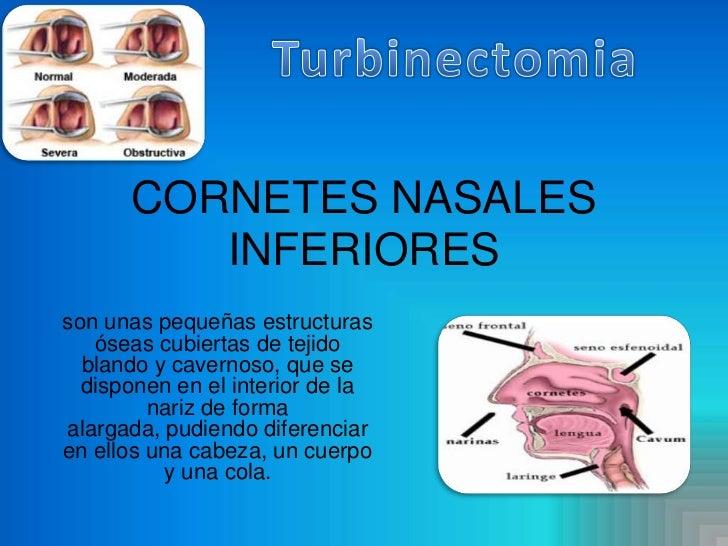 Cornetes nasales inferiores[1]