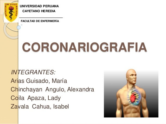 CORONARIOGRAFIA INTEGRANTES: Arias Guisado, María Chinchayan Angulo, Alexandra Coila Apaza, Lady Zavala Cahua, Isabel UNIV...