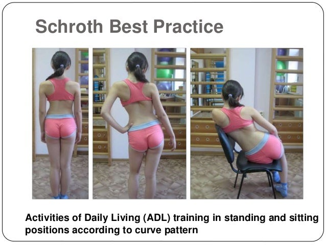 Corrective exercises in the treatment of scoliosis