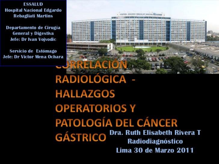 cancer gastrico:  Correlacion de imagenes
