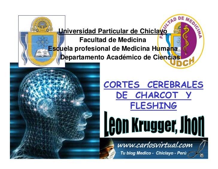 Universidad Particular de Chiclayo          Facultad de Medicina Escuela profesional de Medicina Humana    Departamento Ac...