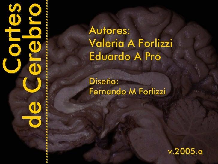 Cortes de Cerebro   Autores:              Valeria A Forlizzi              Eduardo A Pró               Diseño:             ...