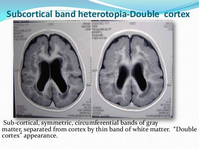 Subcortical Band Heterotopia Subcortical Band