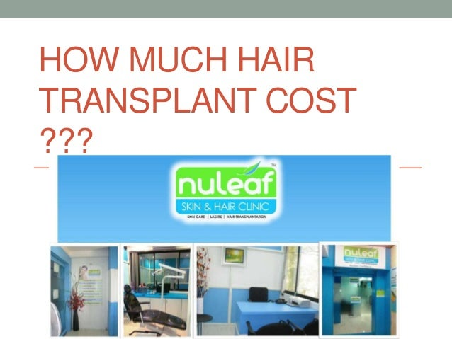 HOW MUCH HAIR TRANSPLANT COST ???