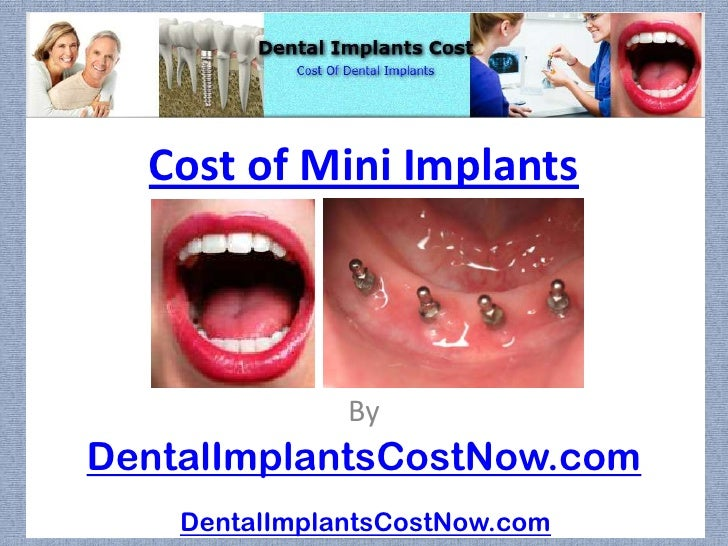 Cost of Mini Implants               ByDentalImplantsCostNow.com    DentalImplantsCostNow.com