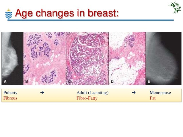 pagets disease of the breast pictures  56321