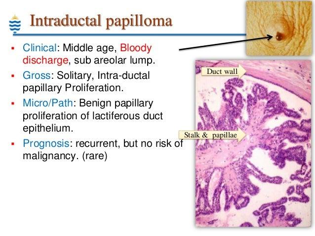 Skin Disease/ Dermatology - Rare skin diseases - Medindia