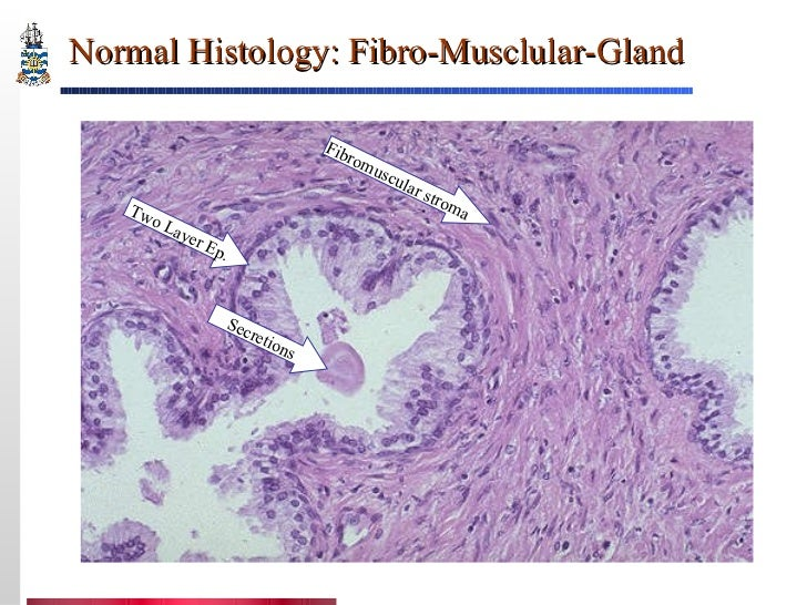 an introduction to the history of the prostate gland The prostate gland produces a thick, white fluid that gets mixed with sperm to  create  family history – having a brother or father who developed prostate  cancer.