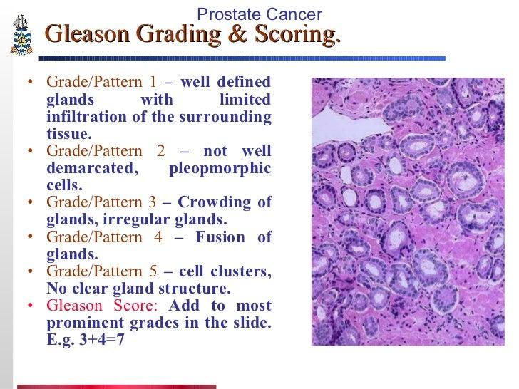 how to get gleason score