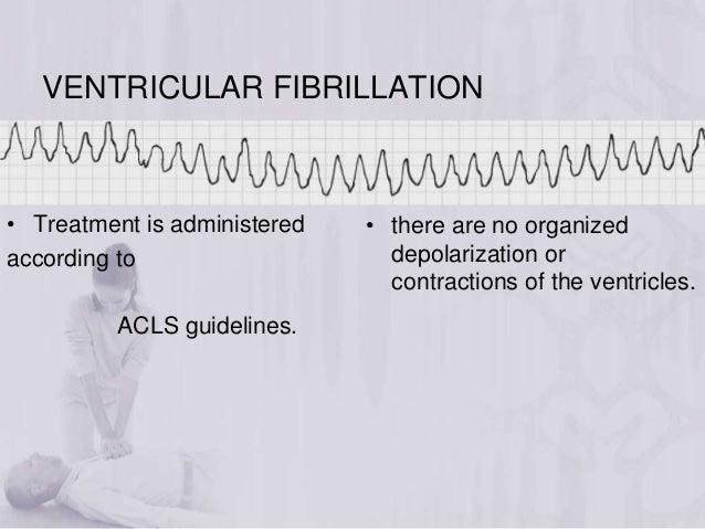 Ventricular Fibrillation Acls Ventricular Fibrillation