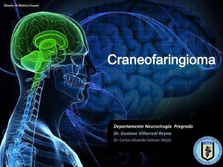 CraneofaringiomaDepartamento Neurocirugía PregradoDr. Gustavo Villarreal ReynaDr. Carlos Eduardo Salazar Mejía