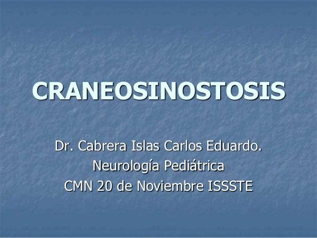 CRANEOSINOSTOSIS Dr. Cabrera Islas Carlos Eduardo.       Neurología Pediátrica  CMN 20 de Noviembre ISSSTE