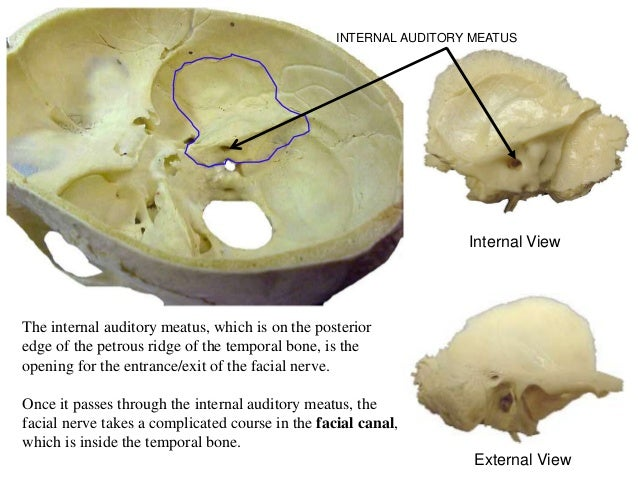 Petrous temporal bone anatomy