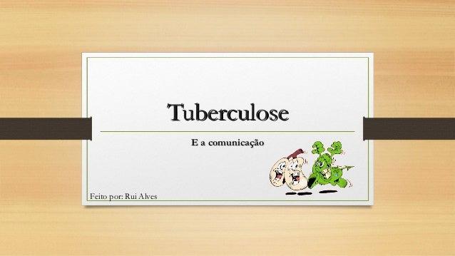Tuberculose E a comunicação  Feito por: Rui Alves