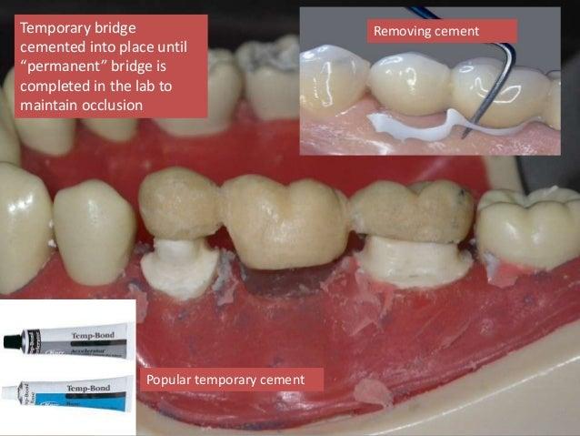 Dental Crown Vs Cap Dental Crowns A Quick Fix That Goes A