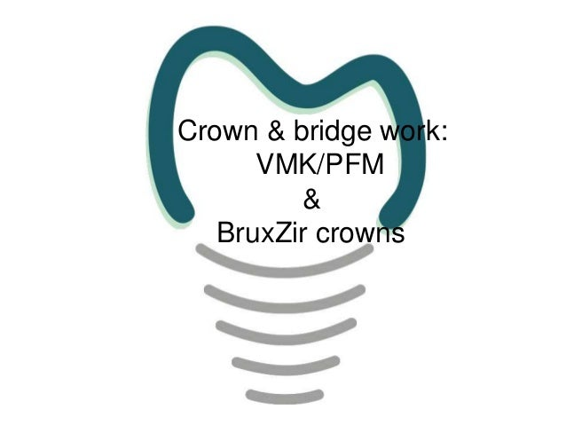 Crown and bridge vmk and bruxir work presentation