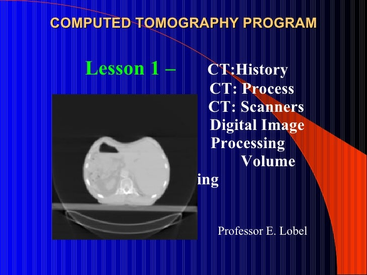 COMPUTED TOMOGRAPHY PROGRAM Professor E. Lobel Lesson 1 –     CT:History   CT: Process CT: Scanners Digital Image    Proce...