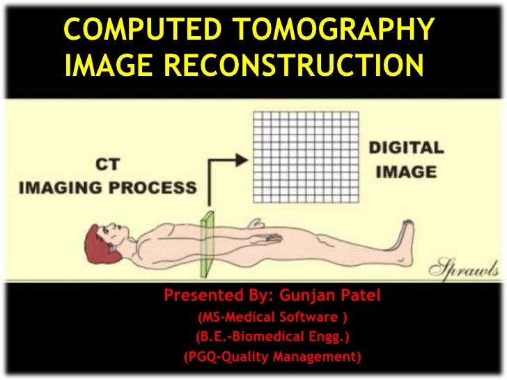 COMPUTED TOMOGRAPHY IMAGE RECONSTRUCTION  Presented By: Gunjan Patel (MS-Medical Software ) (B.E.-Biomedical Engg.) (PGQ-Q...