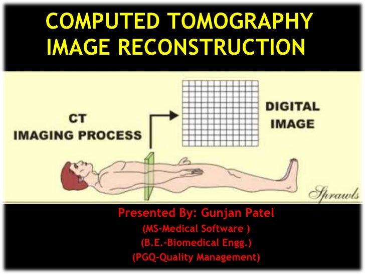 CT Scan Image reconstruction