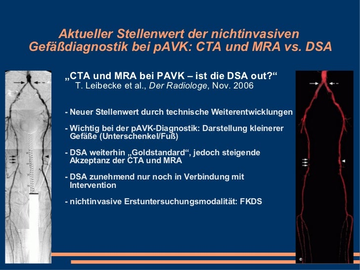 """Aktueller Stellenwert der nichtinvasiven  Gefäßdiagnostik bei pAVK: CTA und MRA vs. DSA <ul><li>"""" CTA und MRA bei PAVK – i..."""