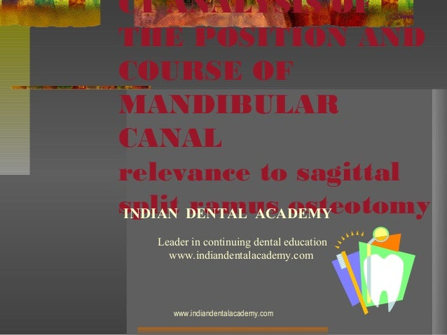 Ct analysis of the position and course of mandibular canal /certified fixed orthodontic courses by Indian dental academy