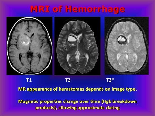 Dating of subdural haematoma