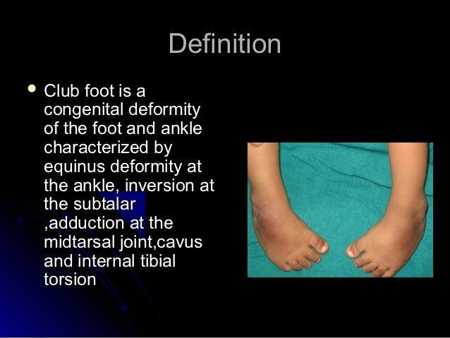 Talipes equinovarus (clubfoot) | Neonatal Orthopedics | Pinterest