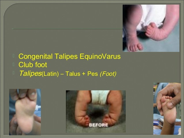  Congenital Talipes EquinoVarus Club foot Talipes(Latin) – Talus + Pes (Foot)