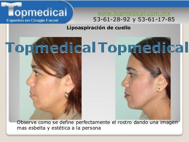 www.topmedical.com.mx 53-61-28-92 y 53-61-17-85 Observe como se define perfectamente el rostro dando una imagen mas esbelt...