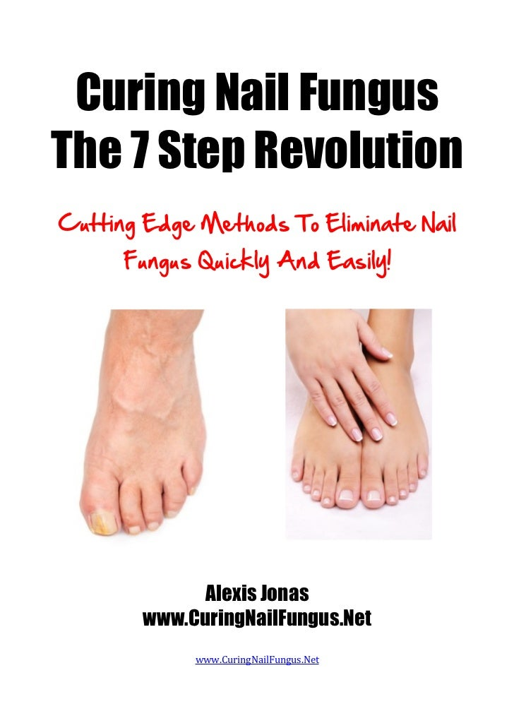 Curing Nail Fungus The 7 Step Revolution