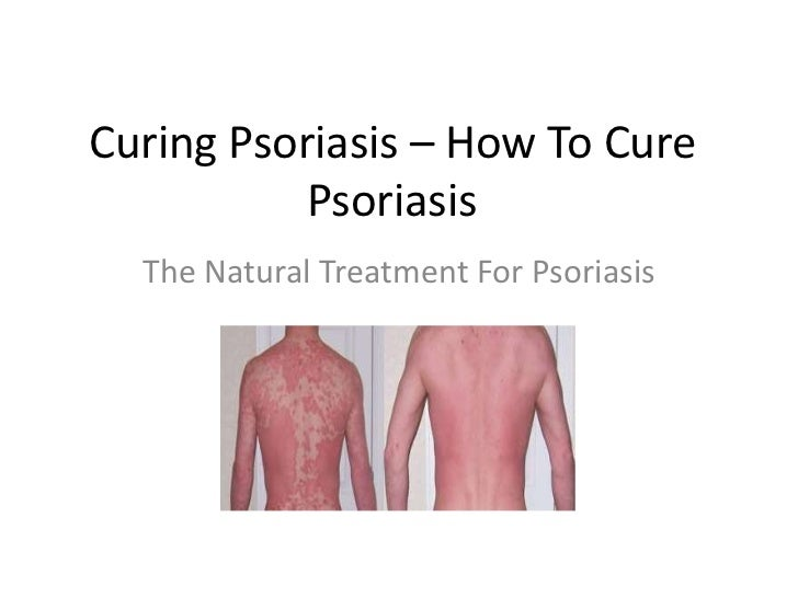 Curing Psoriasis – How To Cure Psoriasis<br />The Natural Treatment For Psoriasis<br />